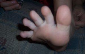 足の指を開いている状態